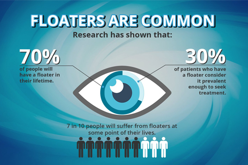 Do you see annoying specks, spots or cobwebs floating across your eyes?